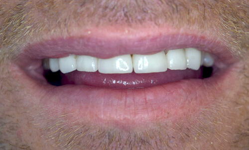 After crowns & veneers treatment