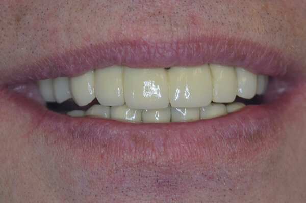 Patient after Smile Makeover