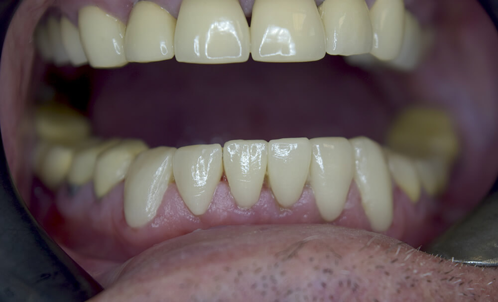 After picture of Dental Crowns