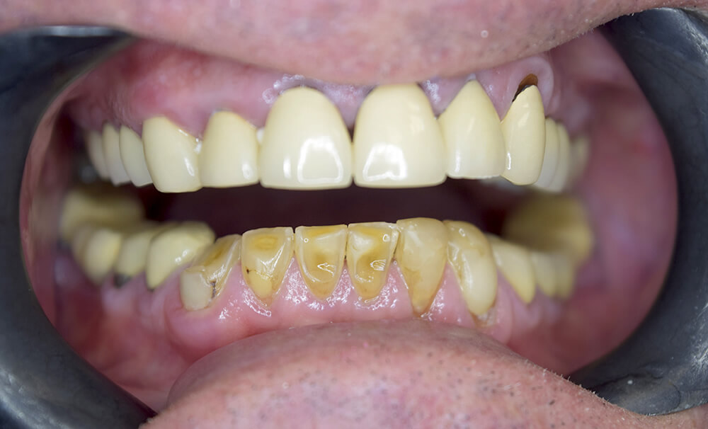 Before picture of Dental Crowns
