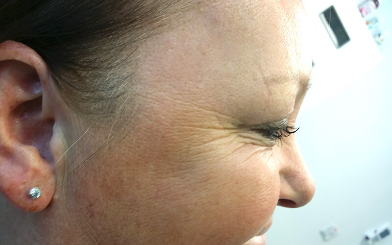Crow's feet after anti wrinkle treatment in Stockport