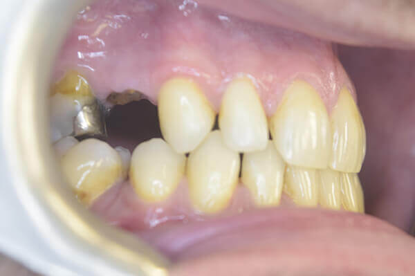 Gap after extraction