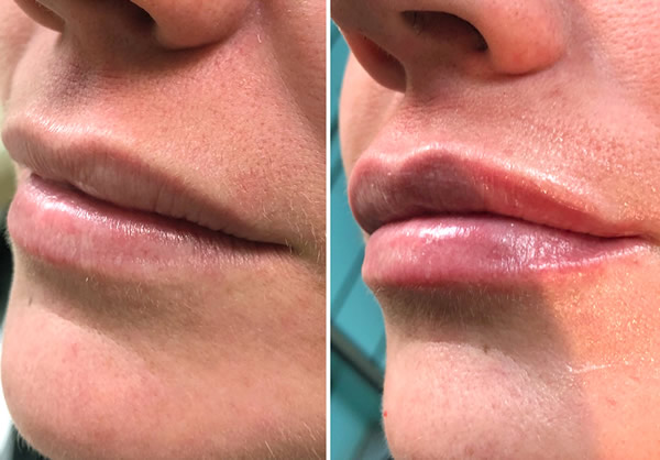 Lip Fillers at Stockport dentist Charisma Clinic