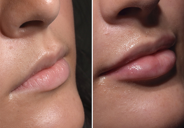 Lip fillers in Stockport