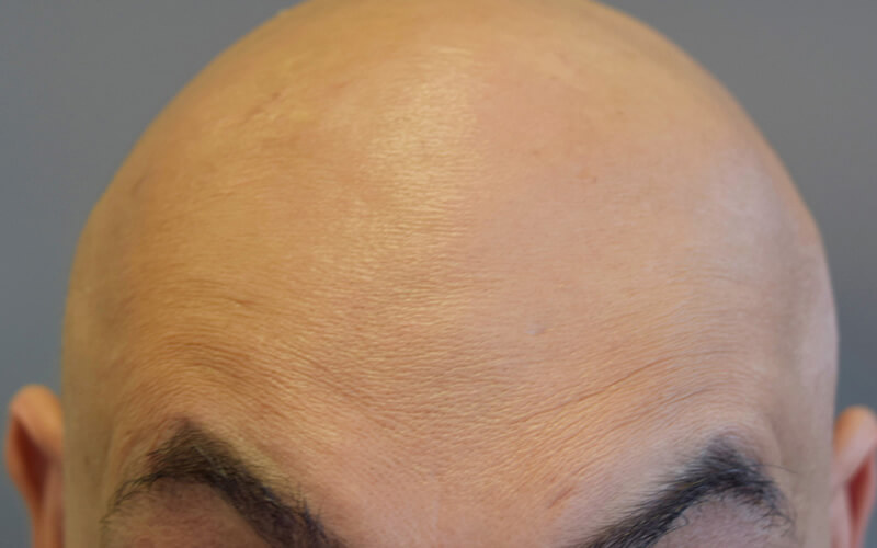 Forehead after anti wrinkle injection in Stockport