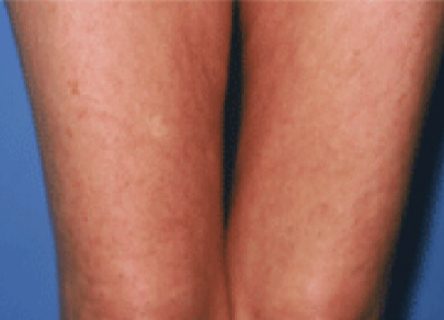 Lipofirm Pro Thighs After 5 Treatments