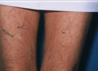 Before Microsclerotherapy Treatment
