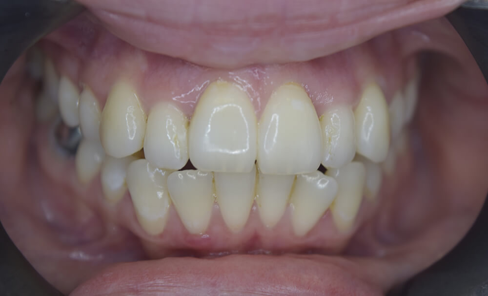 After picture of Teeth Straightening