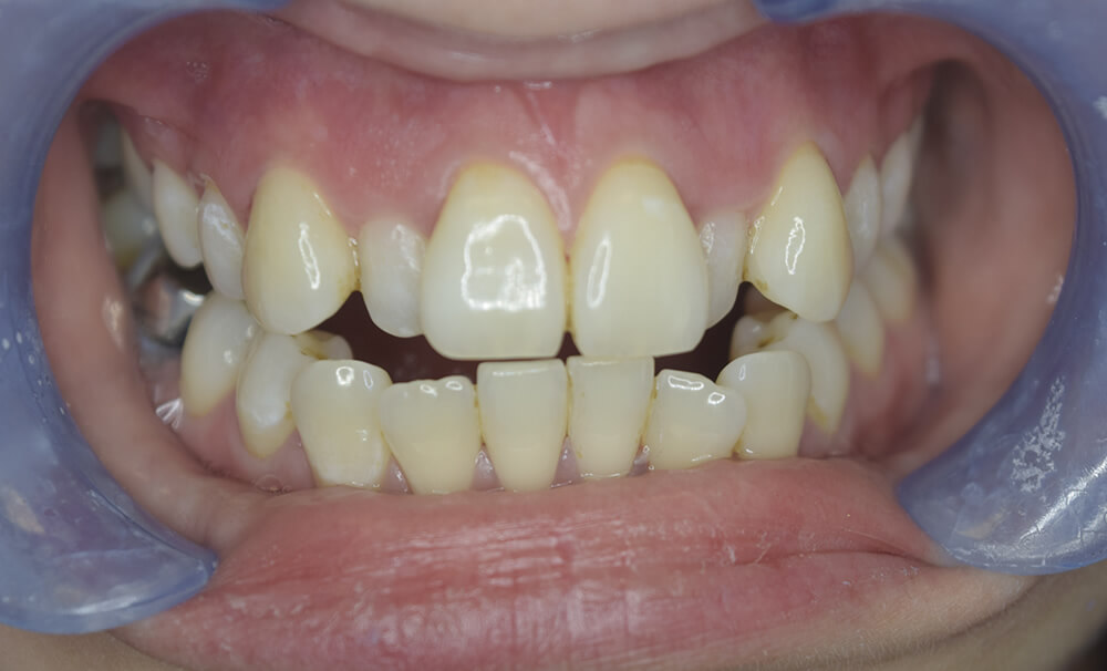 Before picture of Teeth Straightening