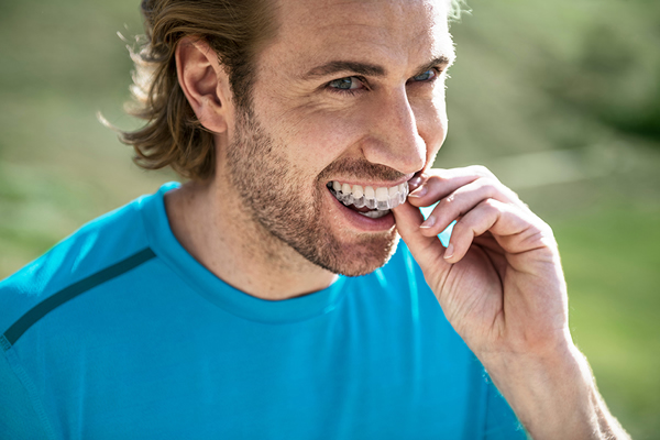 Invisalign clear aligners in Stockport